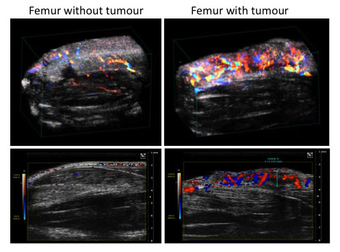 Doppler images showing increased vasculature and blood flow in the presence of an osteosarcoma which contributes to an increase in tumour cell proliferation, invasion and metastasis.