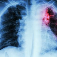 Nature to lead fight against tuberculosis