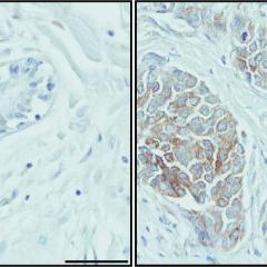 Breast cancer cells play survival trick